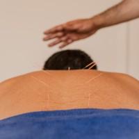 Acupuncture 1